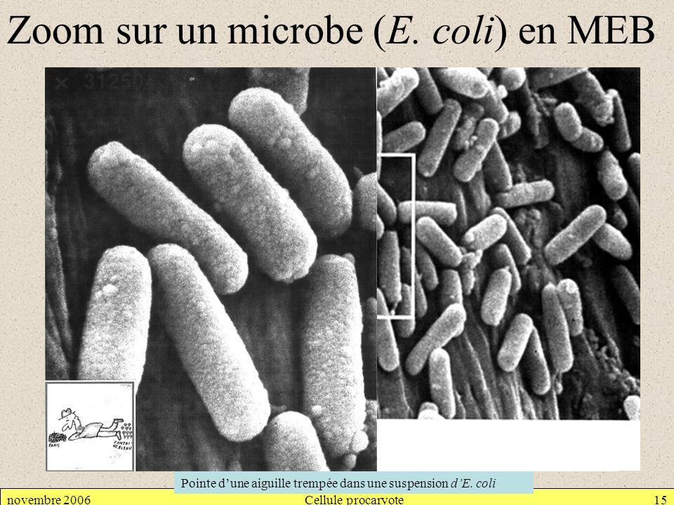 Zoom sur un microbe (E. coli) en MEB