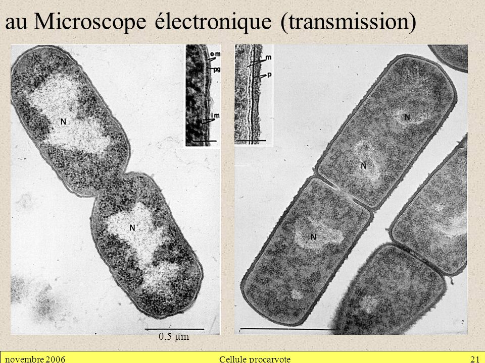 au Microscope électronique (transmission)