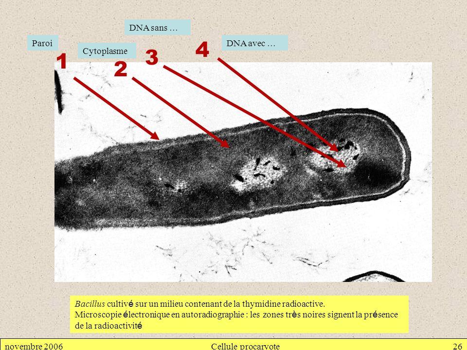 4 3 1 2 DNA sans … Paroi DNA avec … Cytoplasme