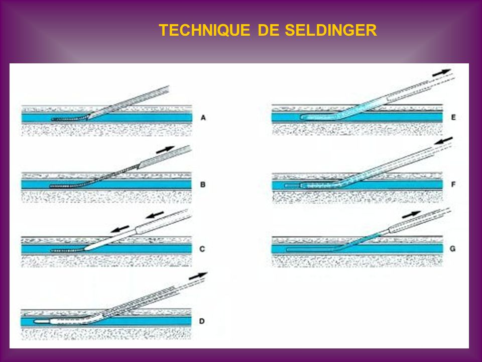 TECHNIQUE DE SELDINGER