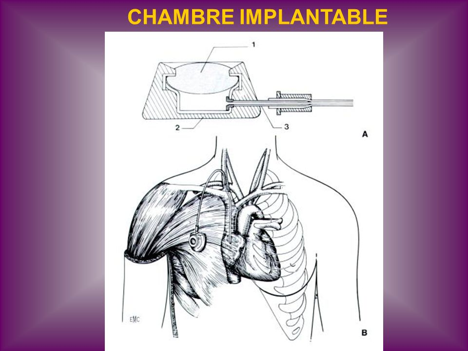 Voies veineuses en reanimation ppt video online t l charger - Chambre implantable percutanee ...