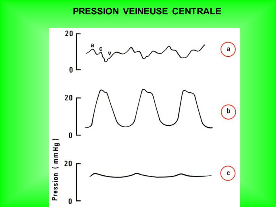 PRESSION VEINEUSE CENTRALE