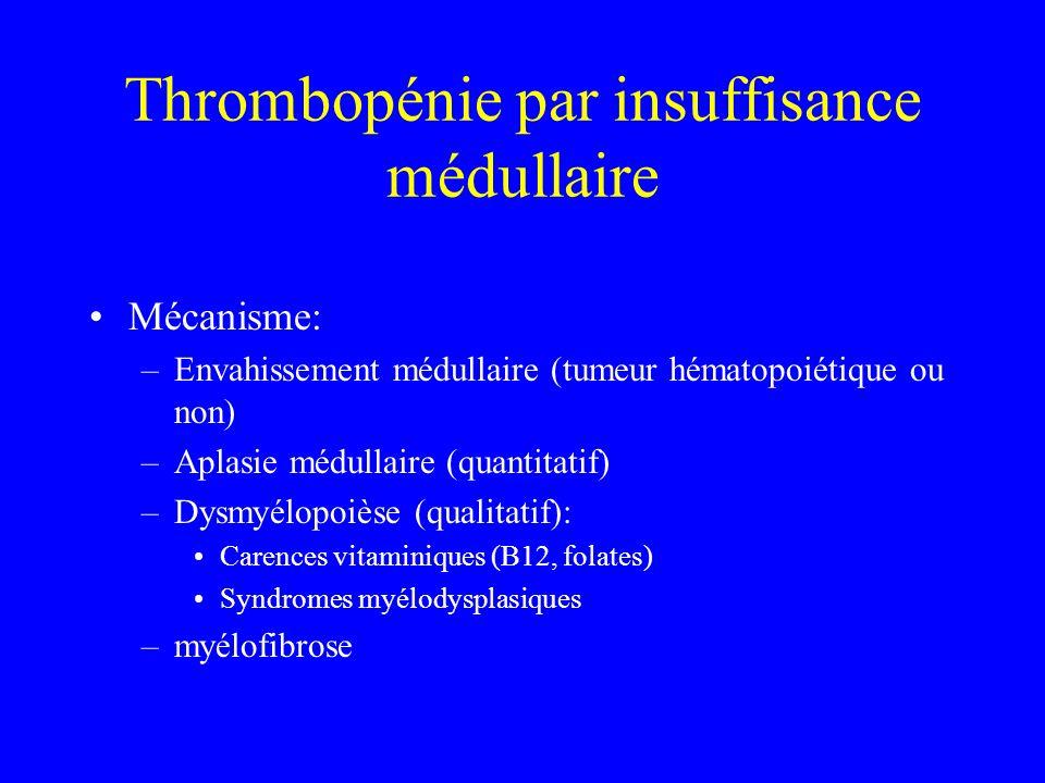 Thrombopénie par insuffisance médullaire