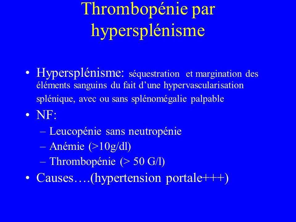 Thrombopénie par hypersplénisme