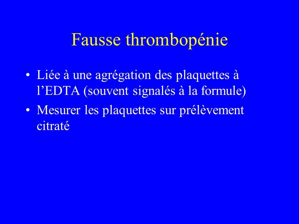 Fausse thrombopénie Liée à une agrégation des plaquettes à l'EDTA (souvent signalés à la formule) Mesurer les plaquettes sur prélèvement citraté.