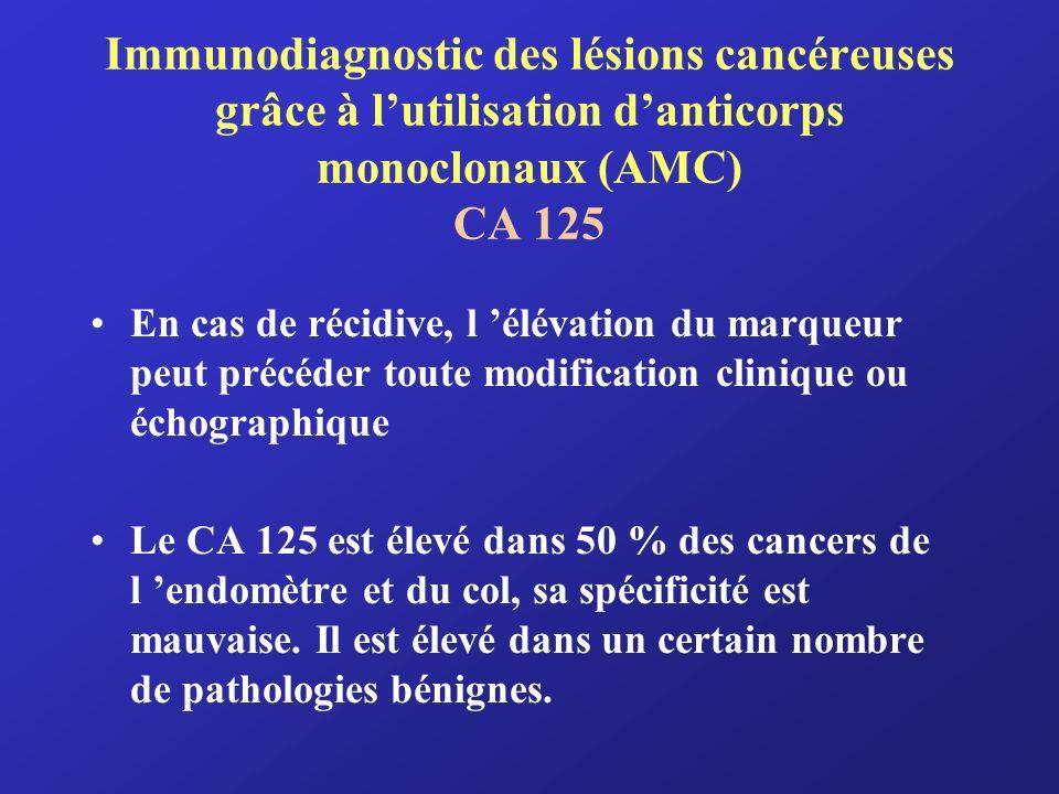 Immunodiagnostic des lésions cancéreuses grâce à l'utilisation d'anticorps monoclonaux (AMC) CA 125