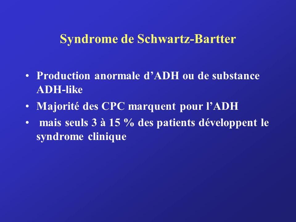 Syndrome de Schwartz-Bartter