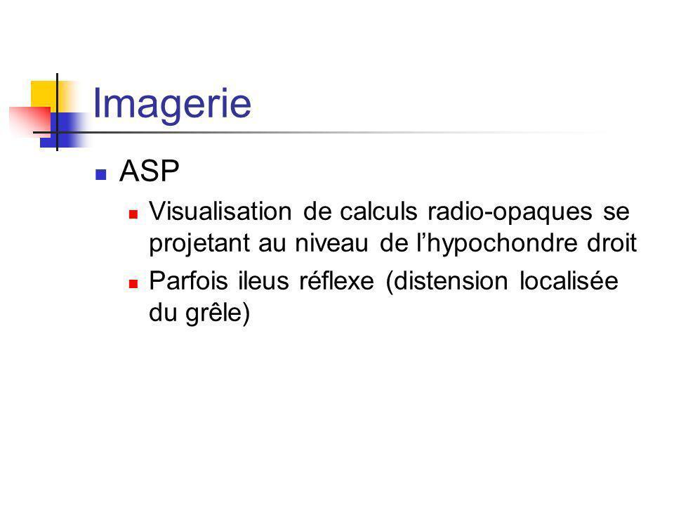 Imagerie ASP. Visualisation de calculs radio-opaques se projetant au niveau de l'hypochondre droit.