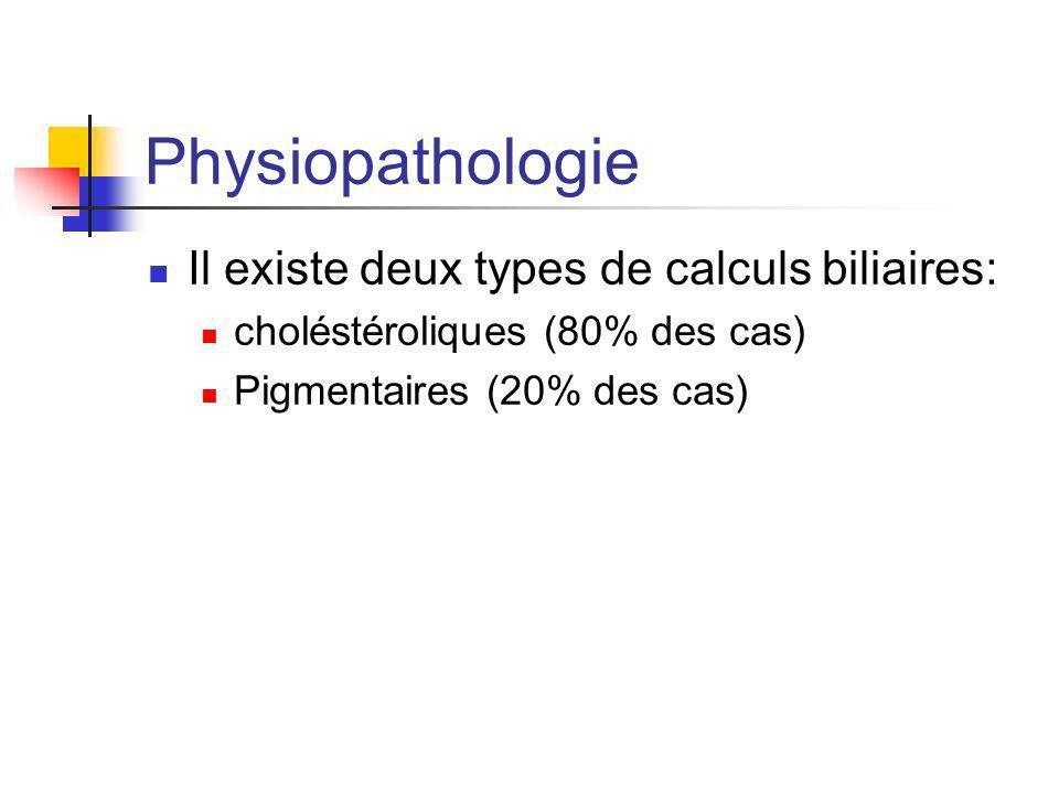 Physiopathologie Il existe deux types de calculs biliaires: