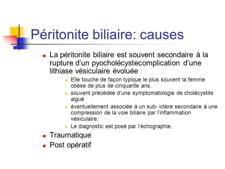 Péritonite biliaire: causes
