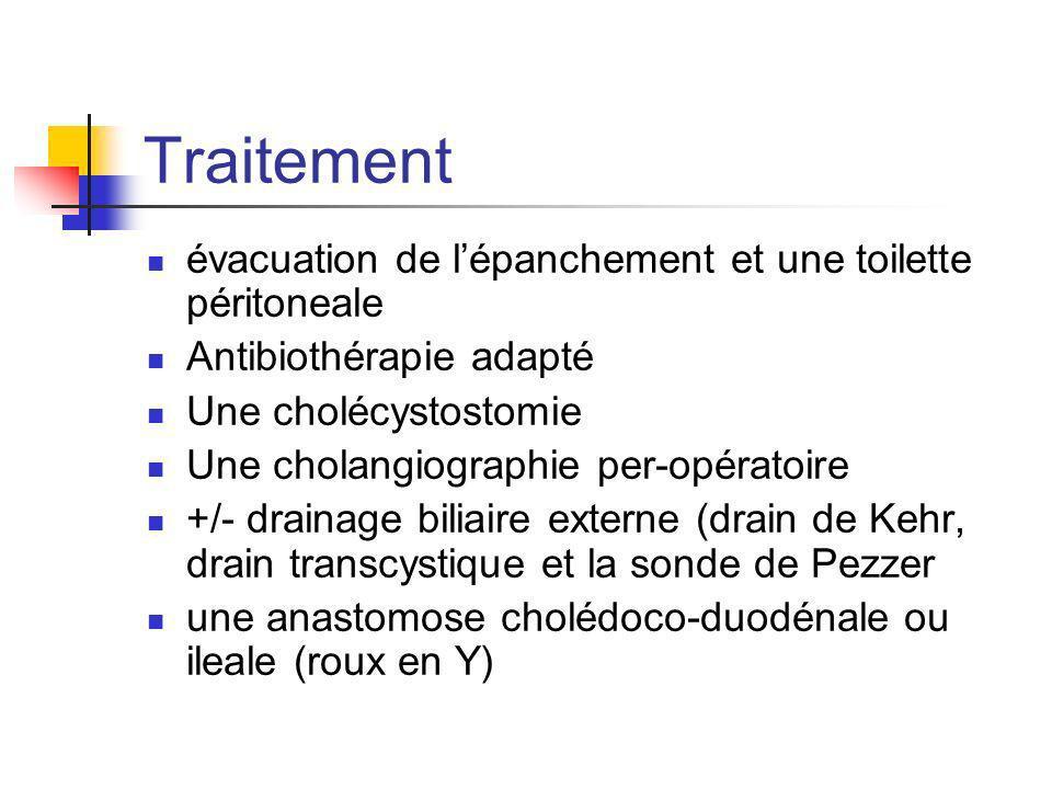 Traitement évacuation de l'épanchement et une toilette péritoneale