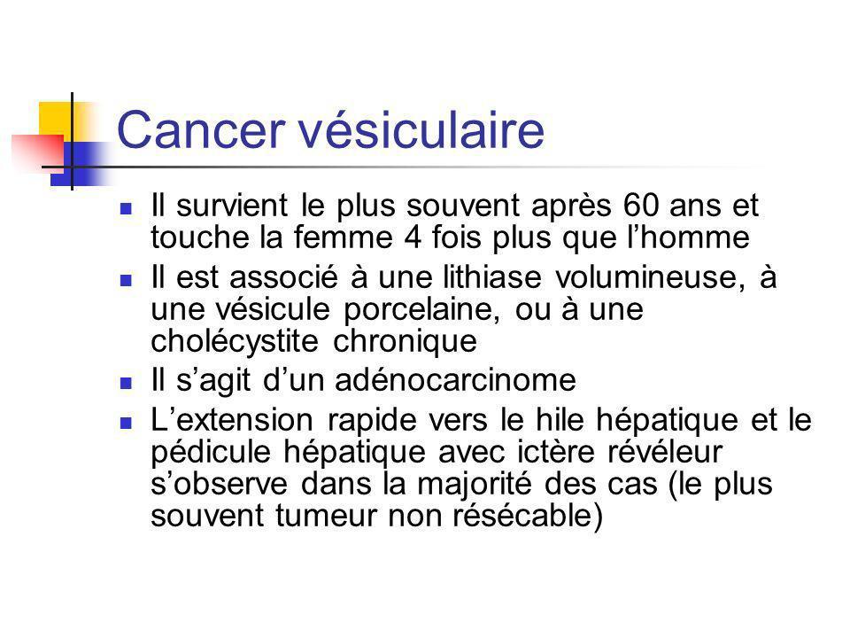 Cancer vésiculaire Il survient le plus souvent après 60 ans et touche la femme 4 fois plus que l'homme.