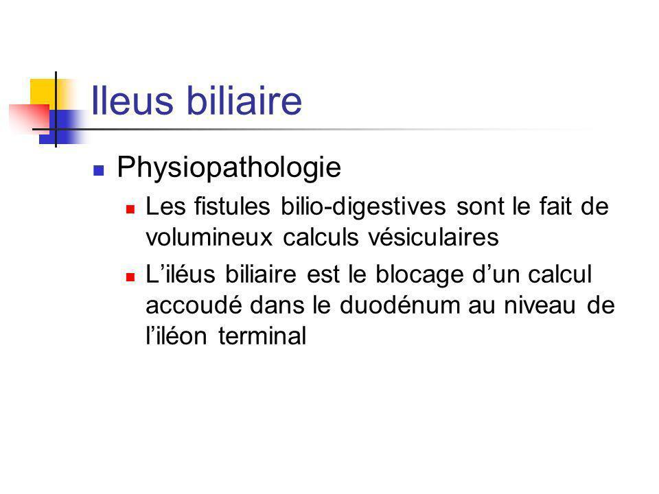 Ileus biliaire Physiopathologie