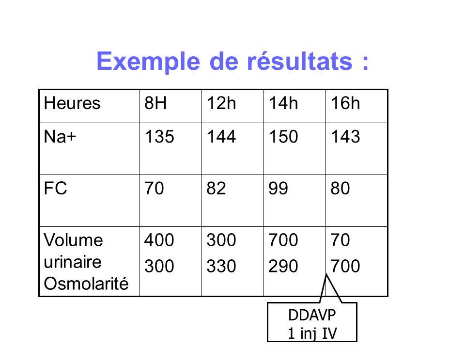 Exemple de résultats :70. 700. 290. 300. 330. 400. Volume urinaire Osmolarité. 80. 99. 82. FC. 143.