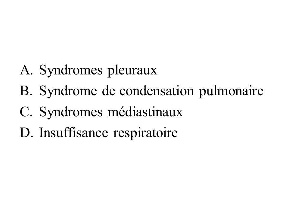Syndromes pleurauxSyndrome de condensation pulmonaire.