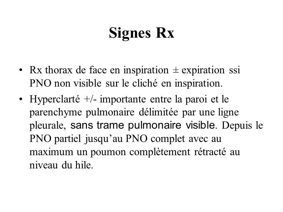 Signes RxRx thorax de face en inspiration ± expiration ssi PNO non visible sur le cliché en inspiration.