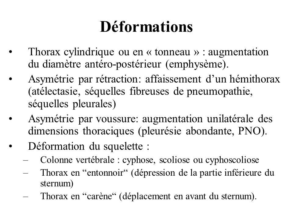 DéformationsThorax cylindrique ou en « tonneau » : augmentation du diamètre antéro-postérieur (emphysème).