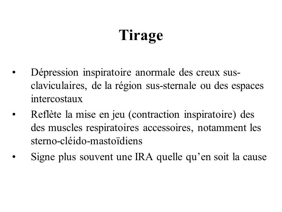 TirageDépression inspiratoire anormale des creux sus-claviculaires, de la région sus-sternale ou des espaces intercostaux.