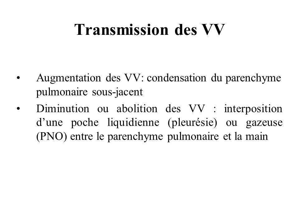 Transmission des VVAugmentation des VV: condensation du parenchyme pulmonaire sous-jacent.