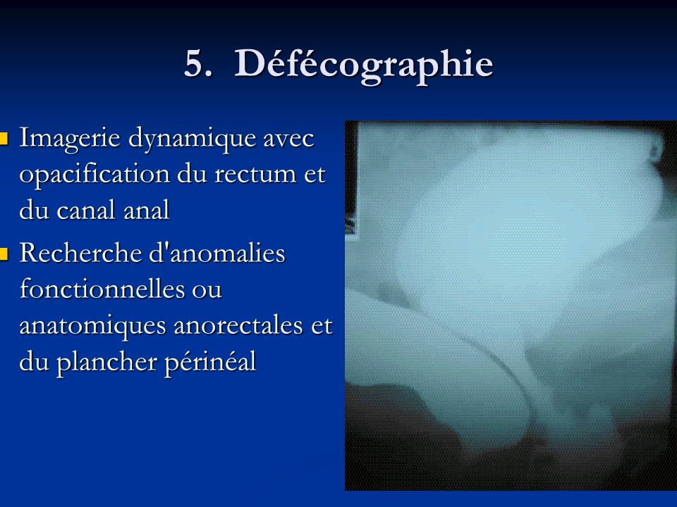 5. Défécographie Imagerie dynamique avec opacification du rectum et du canal anal.