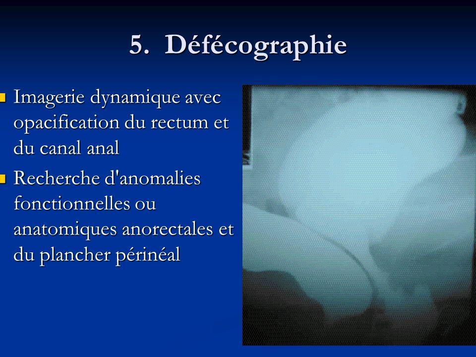 5. DéfécographieImagerie dynamique avec opacification du rectum et du canal anal.