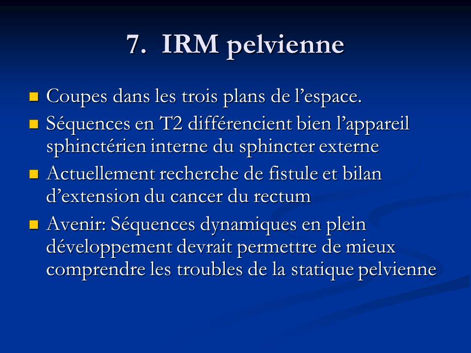 7. IRM pelvienne Coupes dans les trois plans de l'espace.