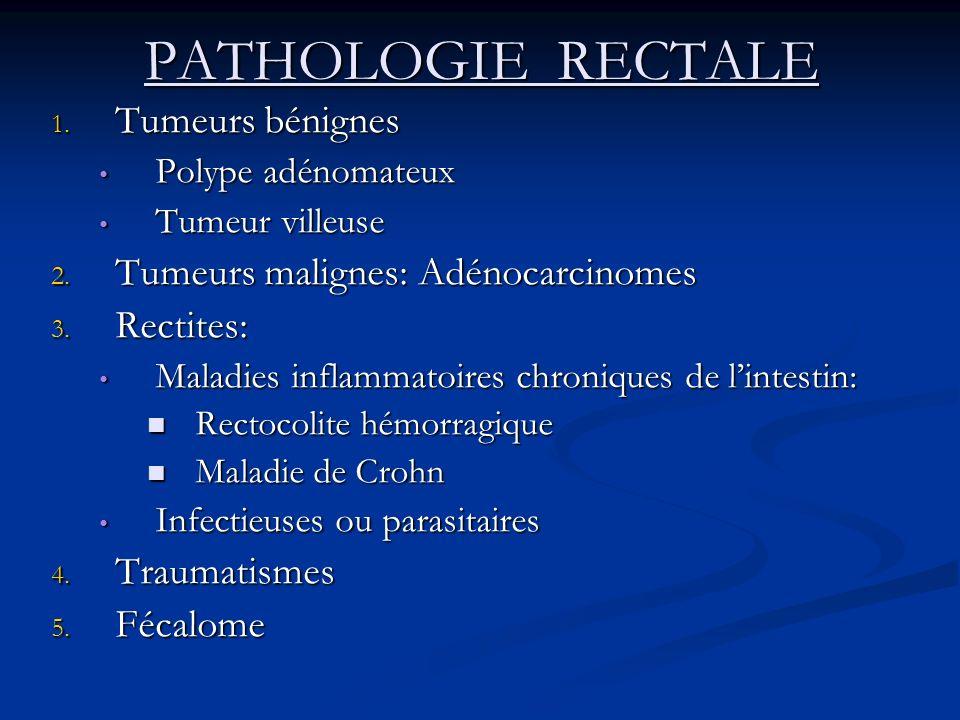 PATHOLOGIE RECTALE Tumeurs bénignes Tumeurs malignes: Adénocarcinomes