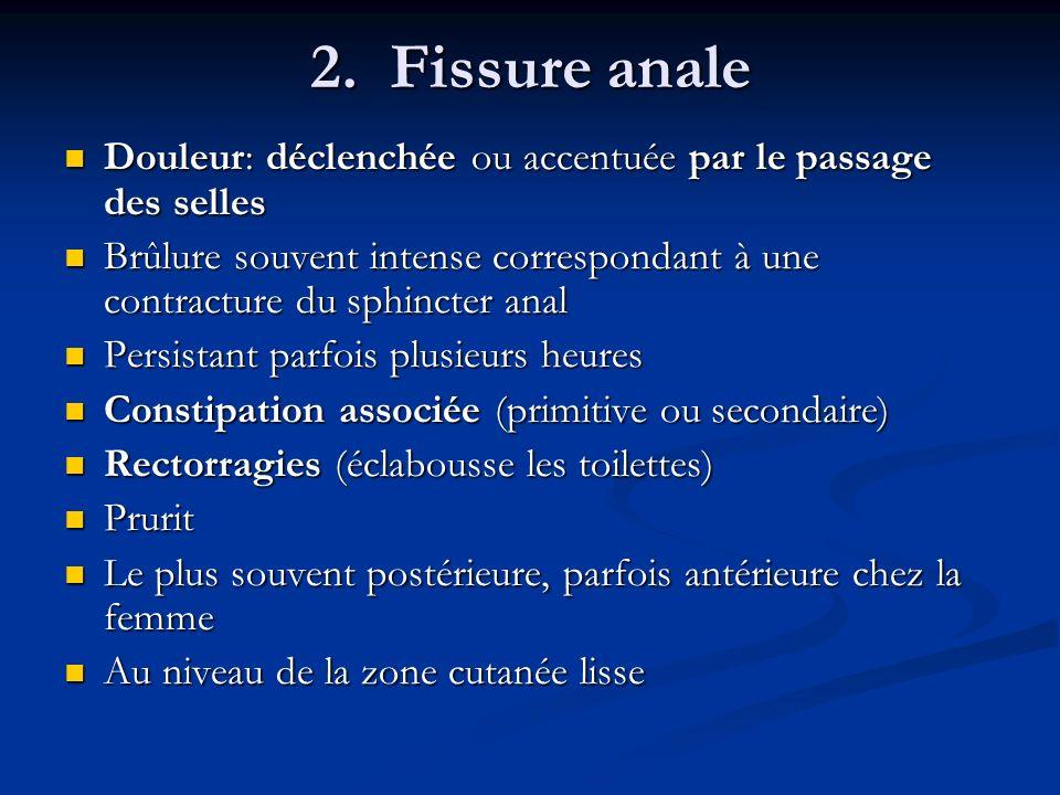 2. Fissure anale Douleur: déclenchée ou accentuée par le passage des selles.
