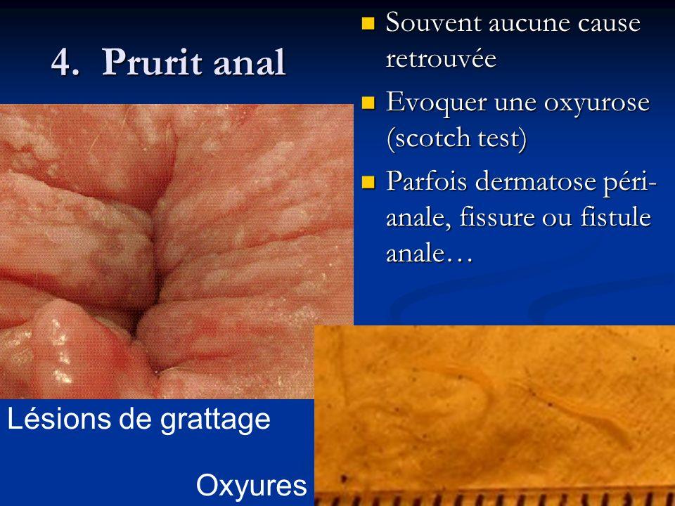 4. Prurit anal Souvent aucune cause retrouvée