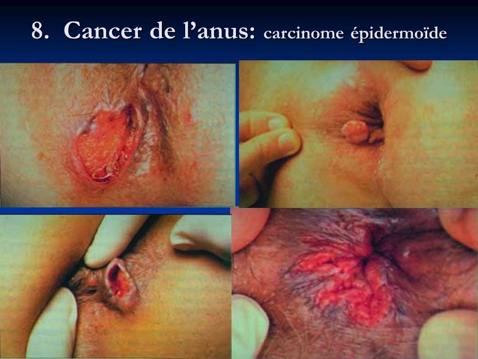 8. Cancer de l'anus: carcinome épidermoïde