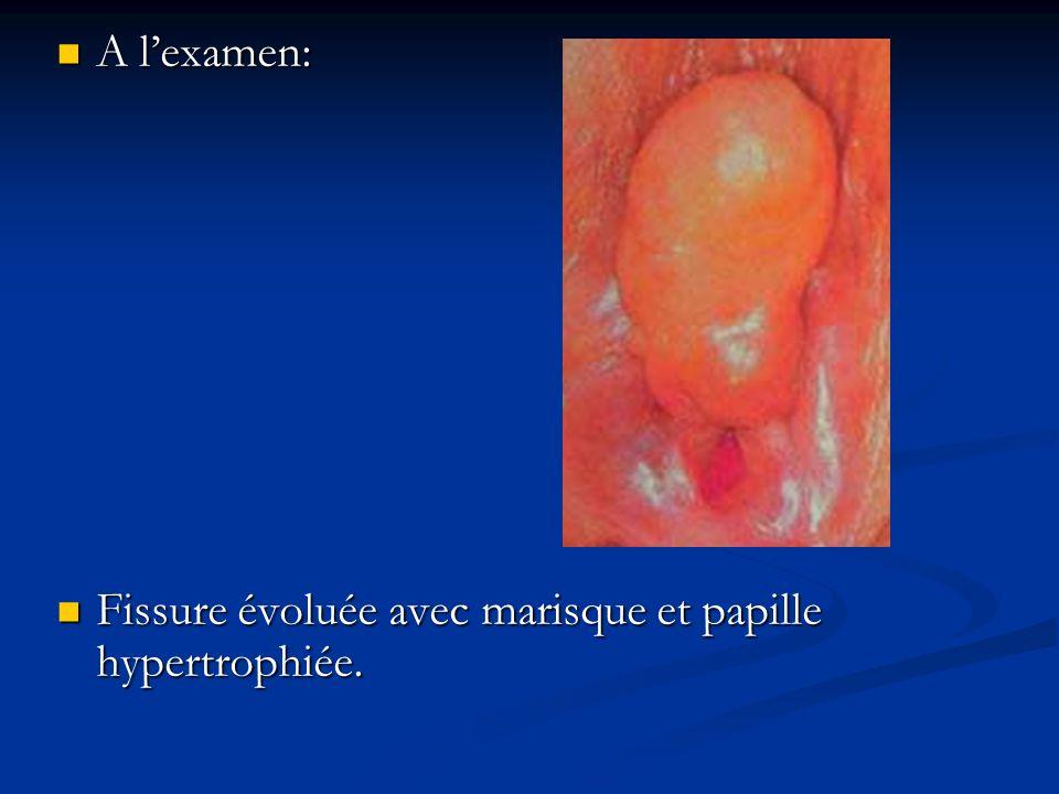 A l'examen: Fissure évoluée avec marisque et papille hypertrophiée.