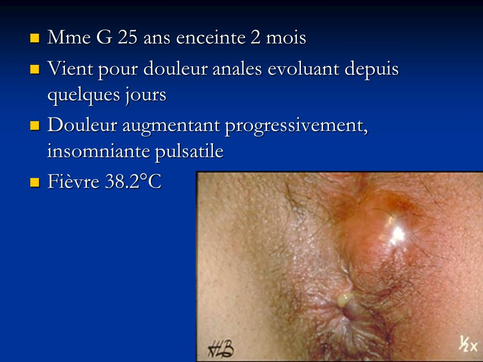 Mme G 25 ans enceinte 2 moisVient pour douleur anales evoluant depuis quelques jours. Douleur augmentant progressivement, insomniante pulsatile.