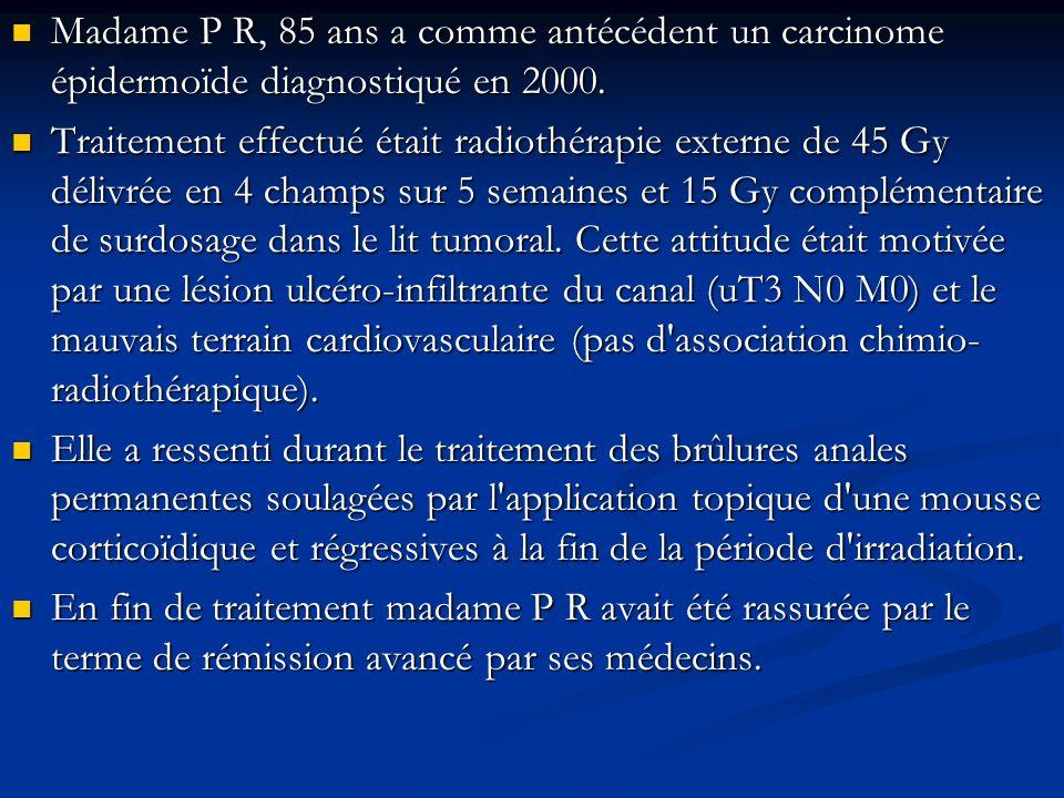 Madame P R, 85 ans a comme antécédent un carcinome épidermoïde diagnostiqué en 2000.
