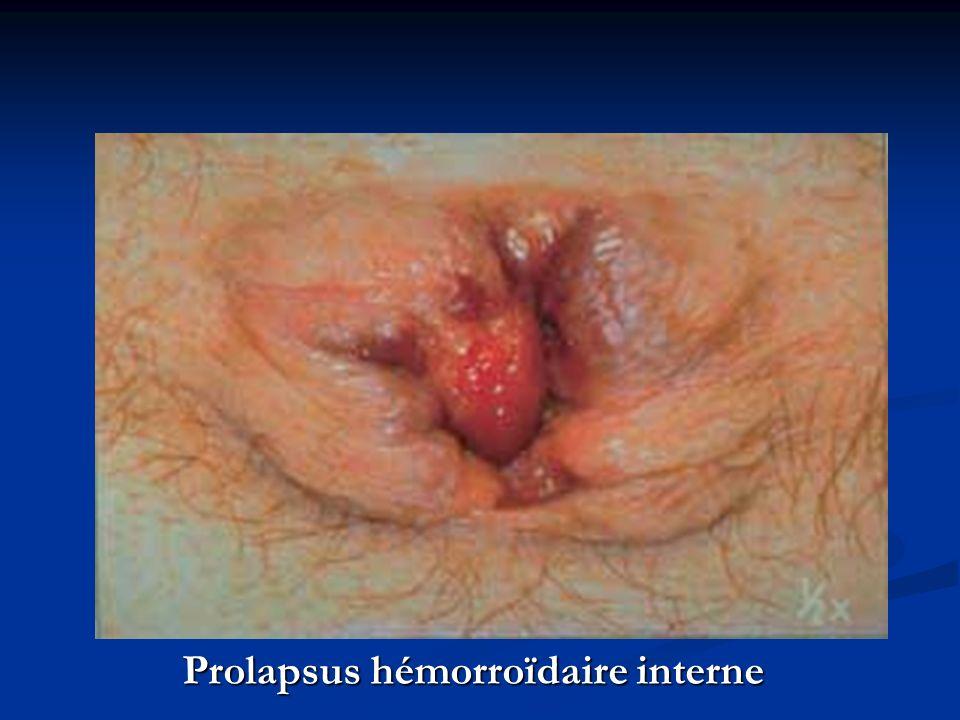 Prolapsus hémorroïdaire interne
