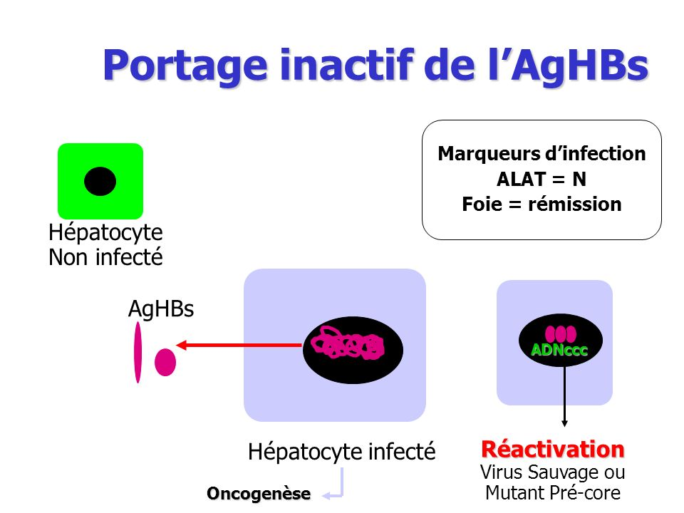 Marqueurs d'infection ALAT = N