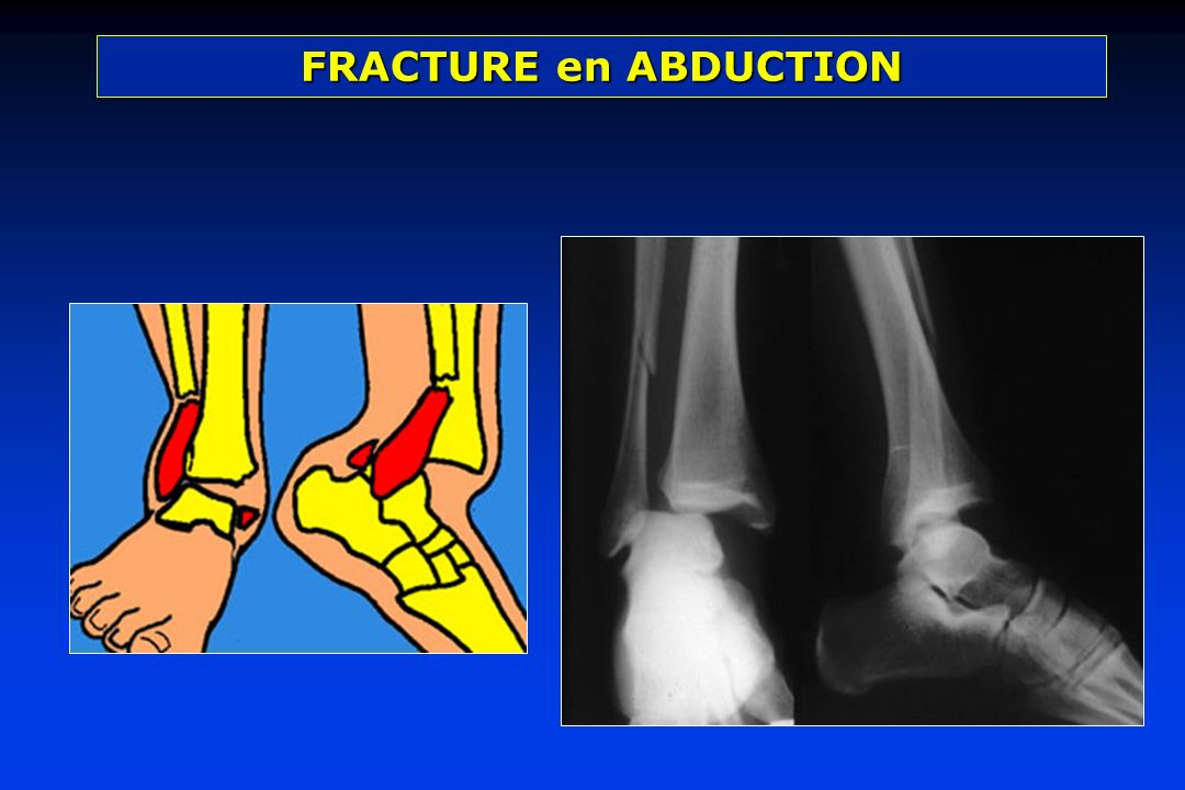 FRACTURE en ABDUCTION