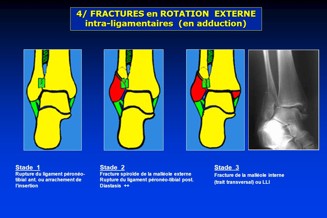 4/ FRACTURES en ROTATION EXTERNE intra-ligamentaires (en adduction)