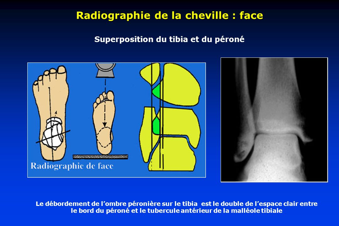 Superposition du tibia et du péroné