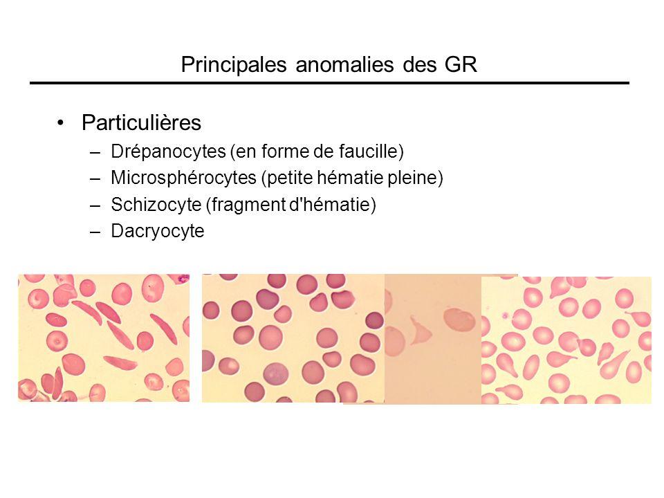 Principales anomalies des GR