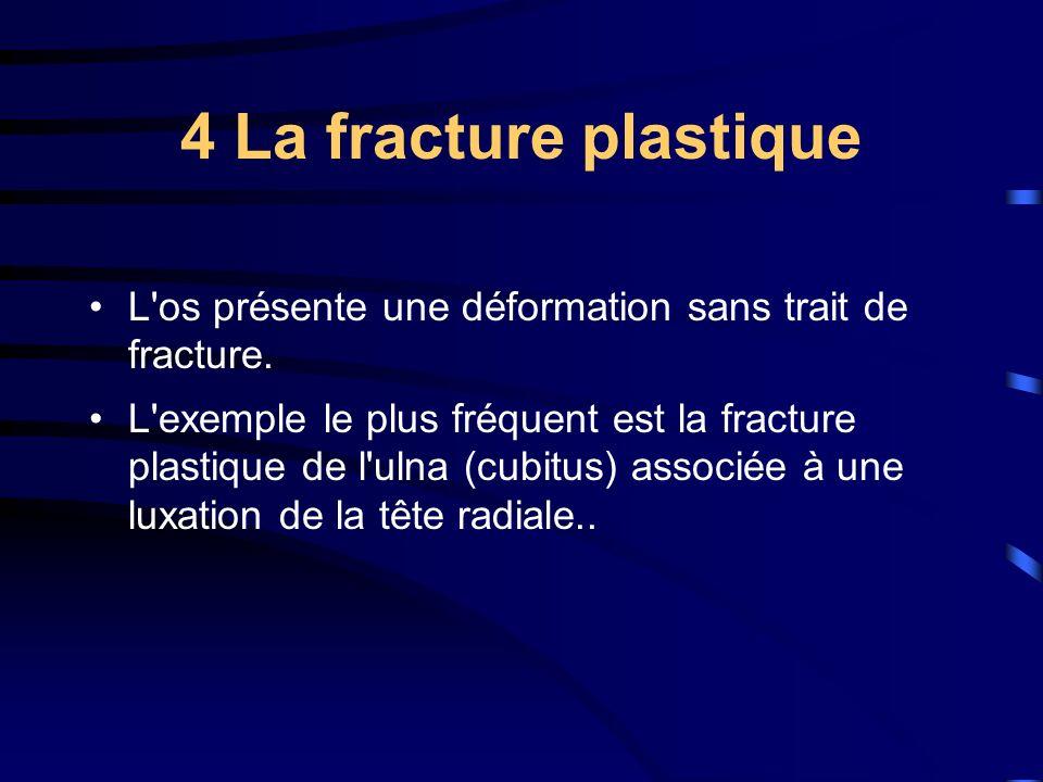 4 La fracture plastique L os présente une déformation sans trait de fracture.