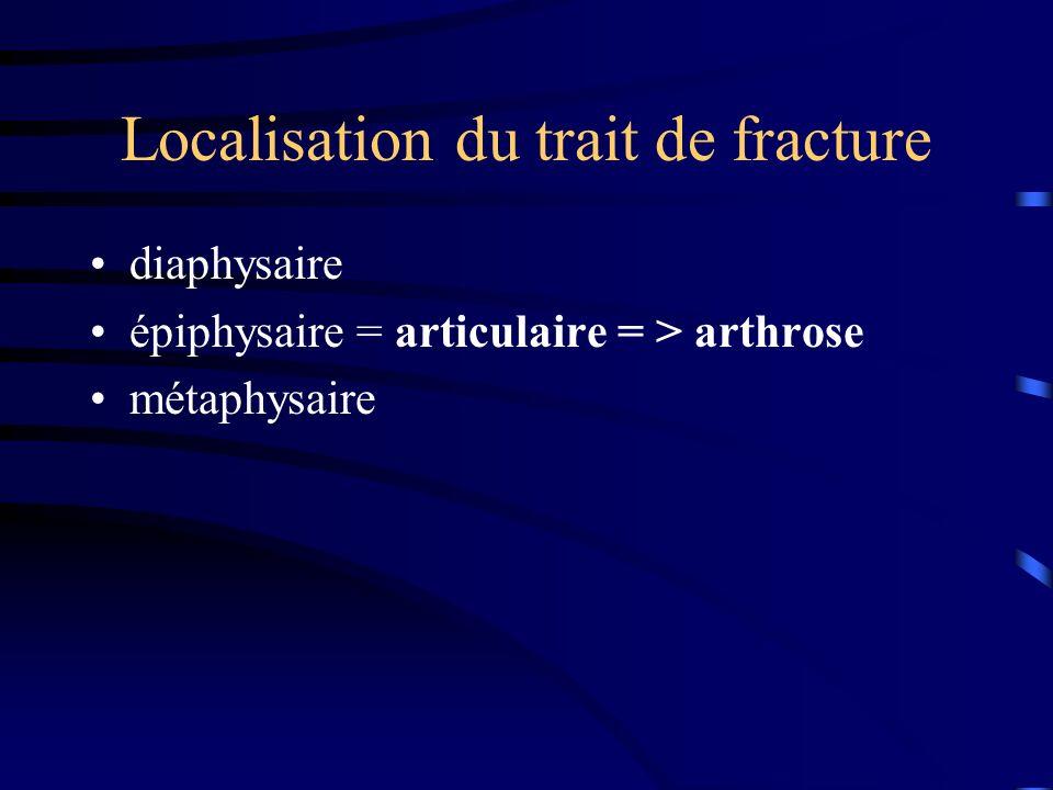 Localisation du trait de fracture