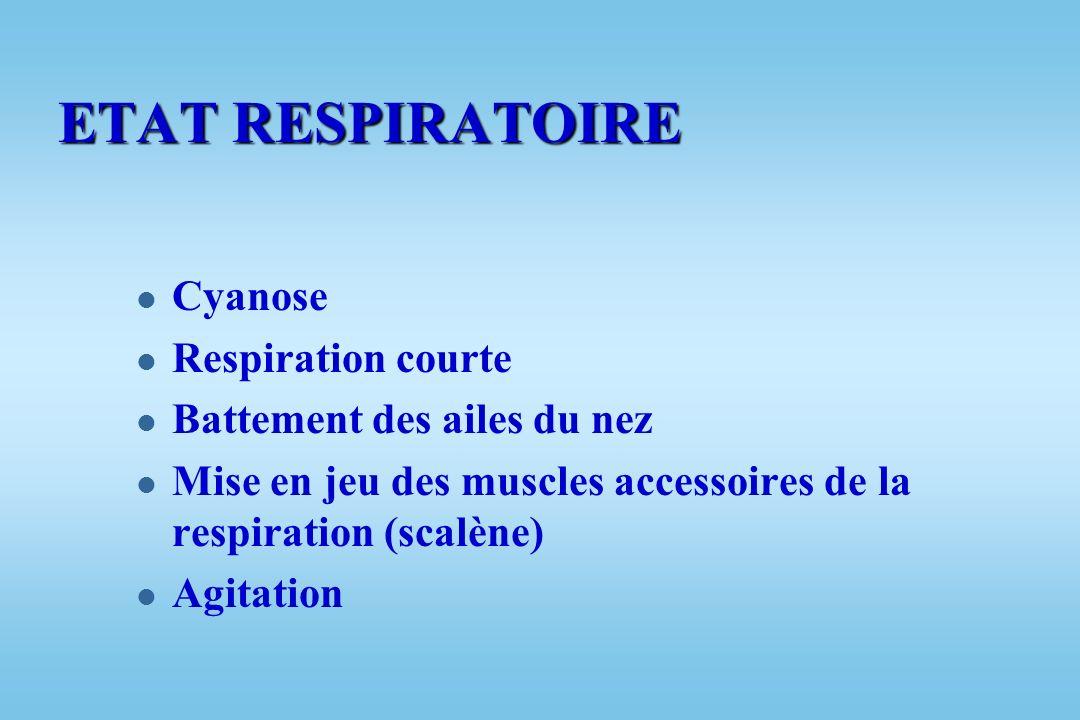 ETAT RESPIRATOIRE Cyanose Respiration courte