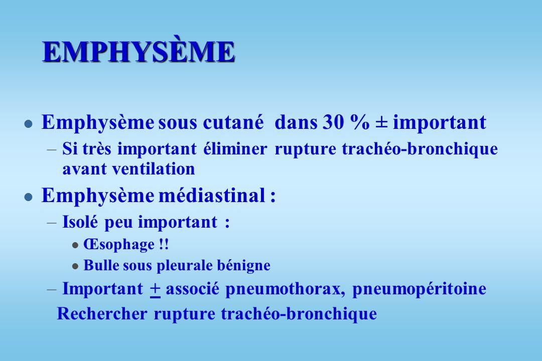 EMPHYSÈME Emphysème sous cutané dans 30 % ± important