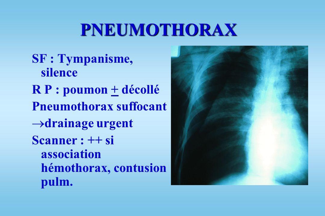 PNEUMOTHORAX SF : Tympanisme, silence R P : poumon + décollé