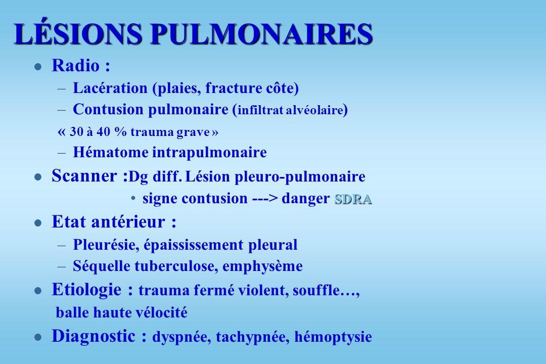 LÉSIONS PULMONAIRES Radio : Scanner :Dg diff. Lésion pleuro-pulmonaire