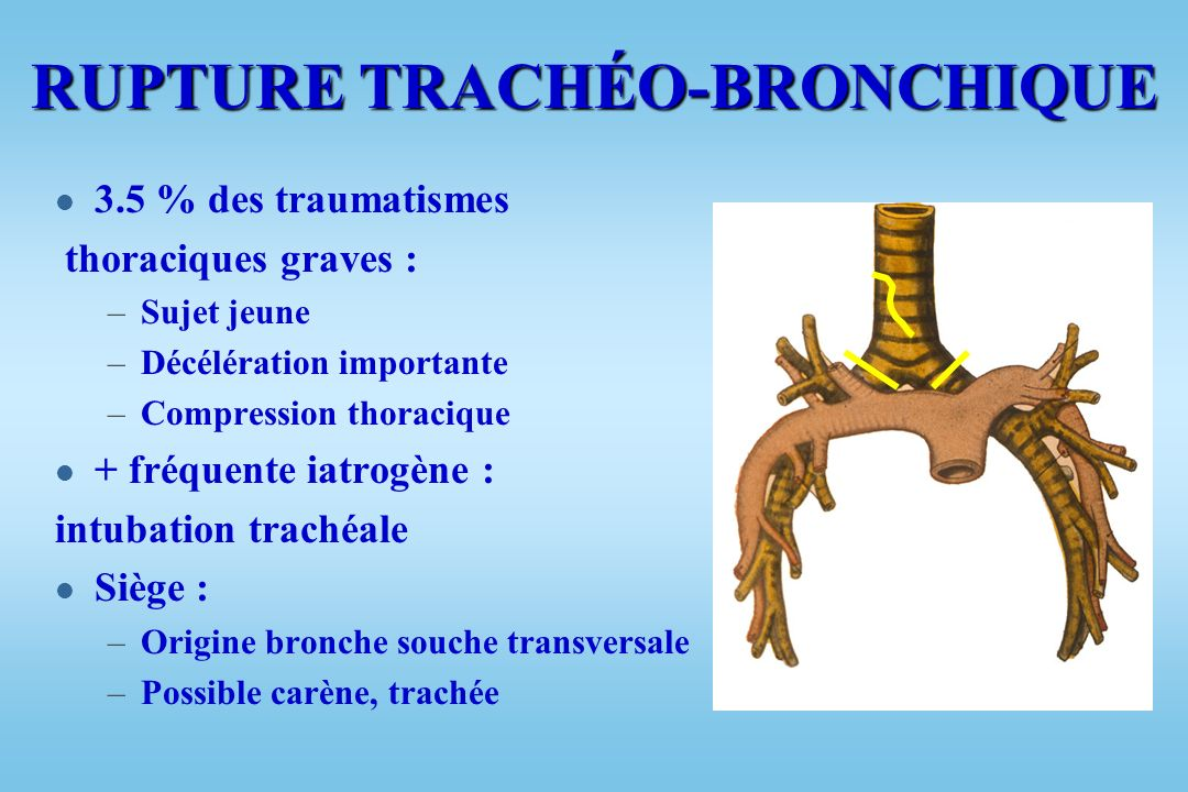 RUPTURE TRACHÉO-BRONCHIQUE