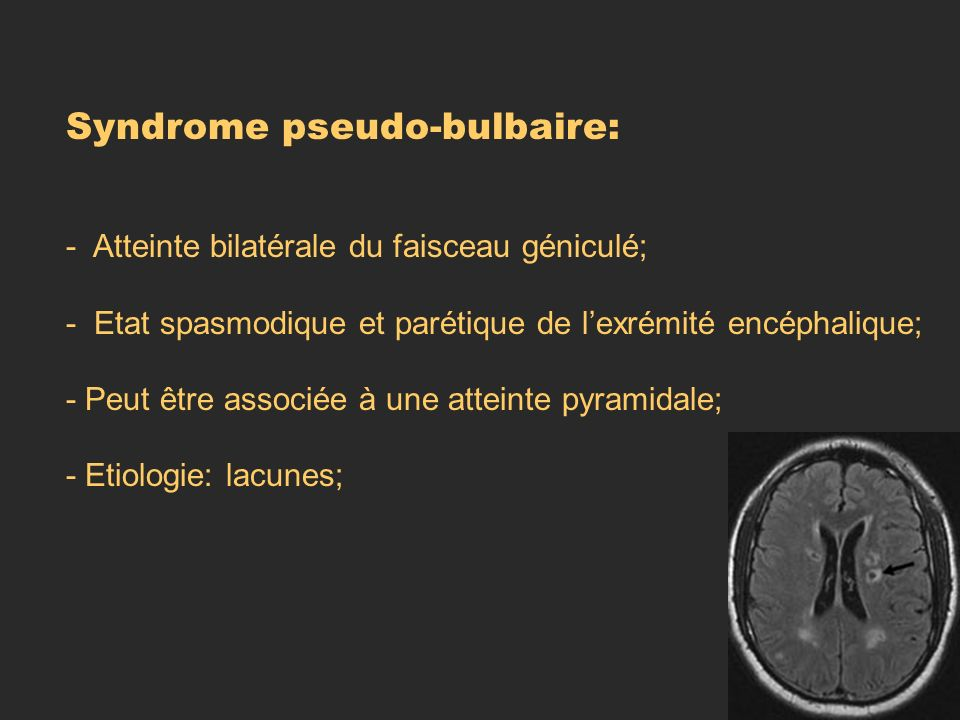 Syndrome pseudo-bulbaire: