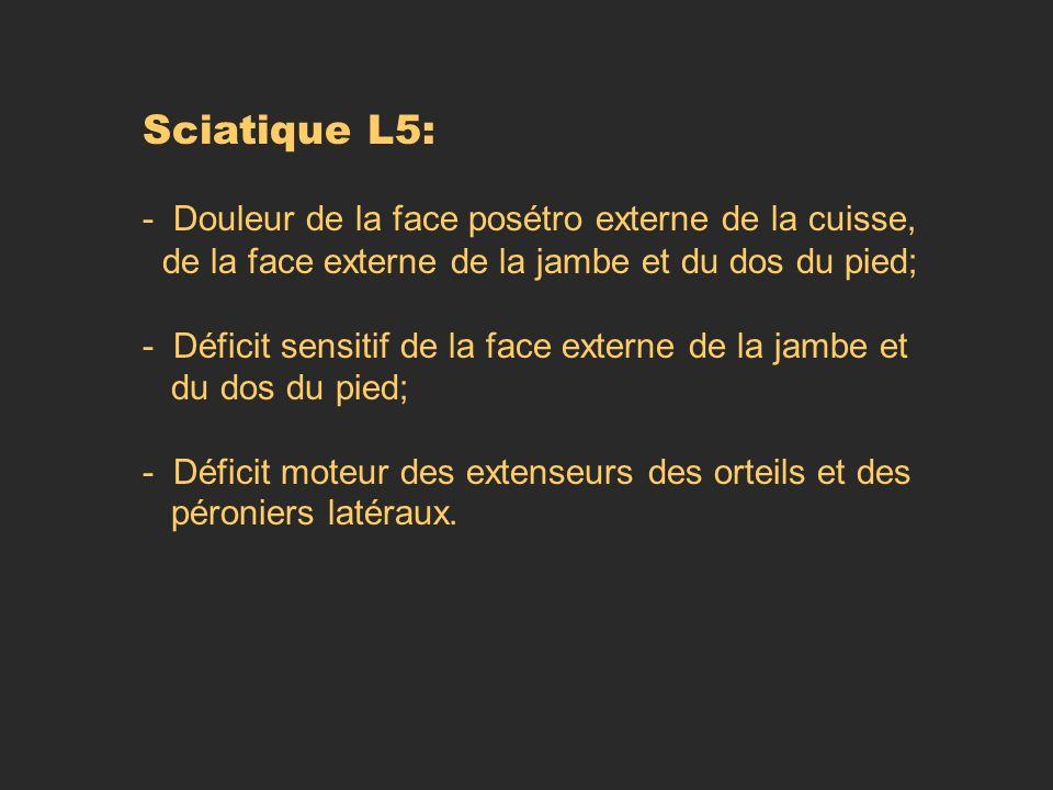 Sciatique L5: - Douleur de la face posétro externe de la cuisse,