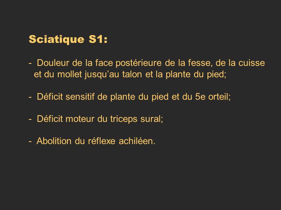 Sciatique S1: - Douleur de la face postérieure de la fesse, de la cuisse. et du mollet jusqu'au talon et la plante du pied;