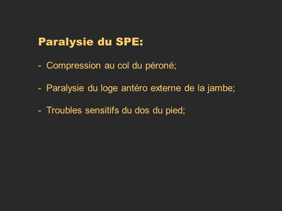 Paralysie du SPE: - Compression au col du péroné;